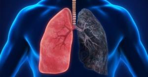 eklenti̇ detaylari solunum-yollari-enfeksiyonu-neden-olusur