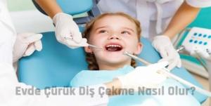 evde çürük diş çekme yöntemleri